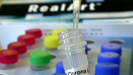 analisi coronavirus